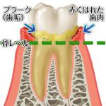 歯肉炎の歯茎