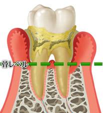 中期の歯周炎