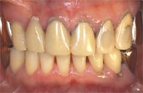 歯周外科処置術前
