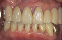 歯周外科処置治療終了時