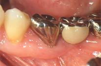 歯周外科処置症例治療終了時