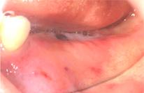 歯周外科処置歯肉が薄い