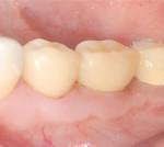 歯周外科処置歯肉が薄い改善