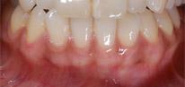 歯茎のブリーチング術後
