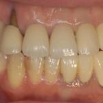 歯肉退縮術前