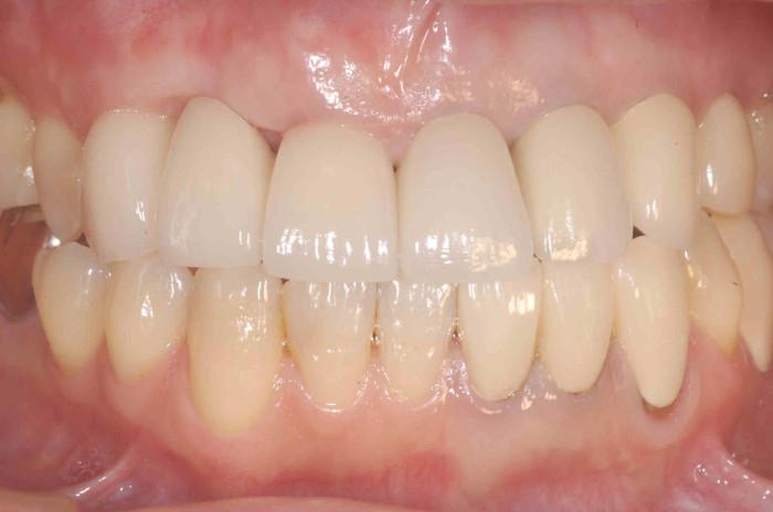 歯肉退縮治療後