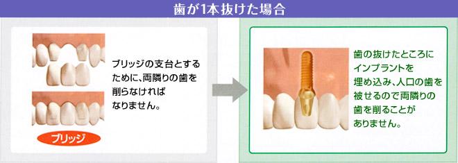 歯が抜けた場合のインプラント治療