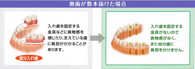 奥歯が数本抜けた場合のインプラント治療