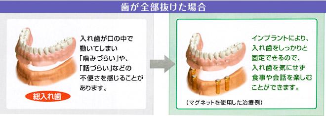 歯が全部抜けた場合のインプラント治療