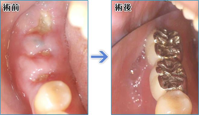 抜歯した奥歯をインプラントに