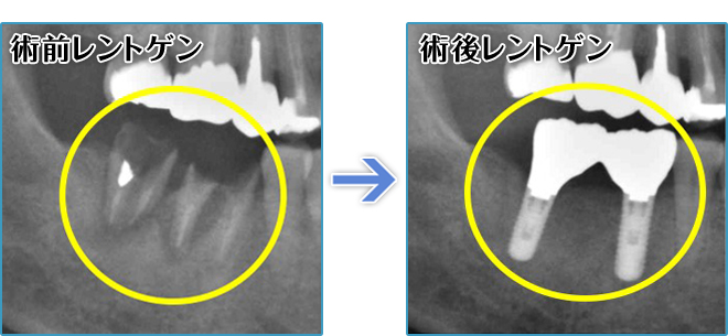 奥歯のインプラントレントゲン写真